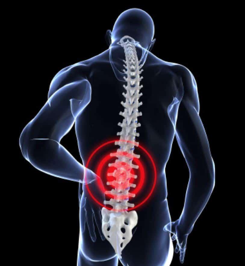 dr scott skuteczny na ból kręgosłupa i stawów
