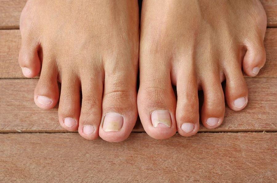 Fungonis Gel skuteczny na grzybicę stóp i paznokci