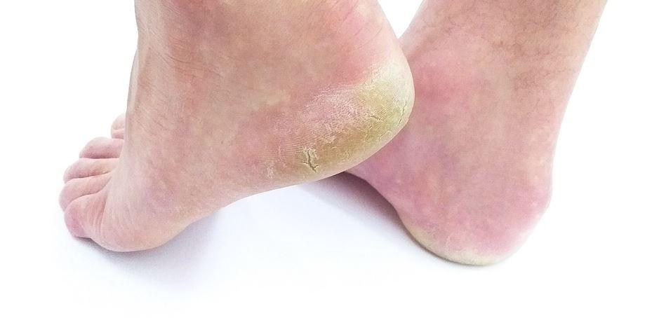 FungoLock skuteczny krem na grzybicę żółtą skórę rogowacenia skóry patogeniczne grzyby