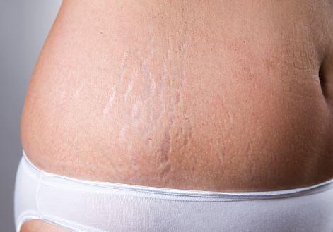 Revamin krem potrafi zlikwidować rozstępy na brzuchu udach ramionach