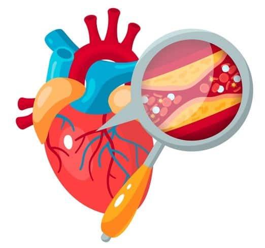 friocard ma w składzie czosnek który wzmacnia żyły i tętnice oraz obniża ciśnienie