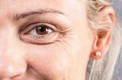 EleverSkin Glow uzupełnia kolagen przez co skóra odzyskuje nawodnienie i zmarszczki znikają