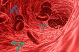 corsanum tętnica, miażdżyca