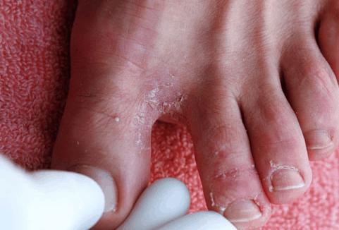 grzybice stóp objawiają się czerwonymi plamami możesz je wyleczyć środkiem w kremie exodermin