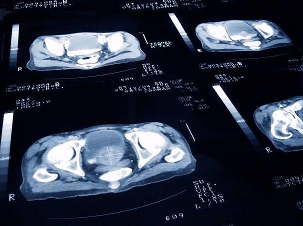 jeżeli diagnoza wskazuje powiększenie prostaty stosuj uromexil