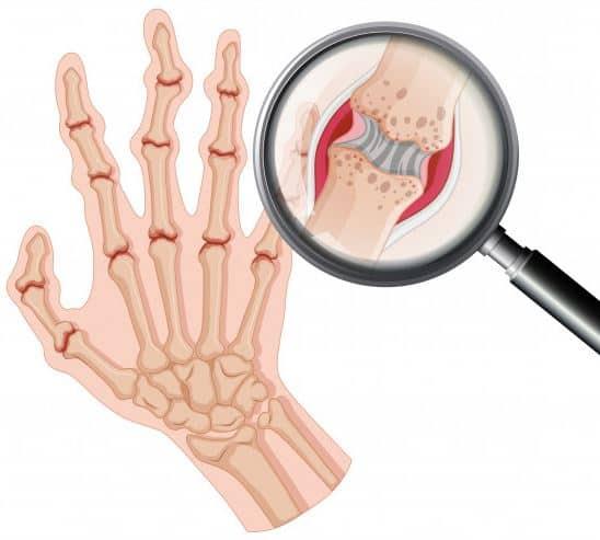 ból stawów skutecznie wyleczysz flexinea