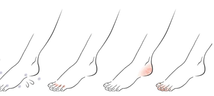 Exodermin skutecznie zwalczy każdy rodzaj grzybicy czy to stóp czy paznokci